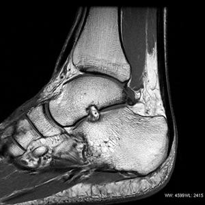 GEHC_GetCreative_MRI_SHDxt30_ClinicalAnkleTLR1