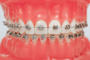 Damon-braces.jpg