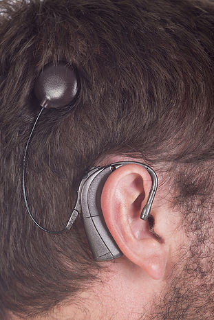 cochlear implant doctor clinic in little rock