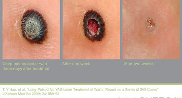 airdrie wart treatment