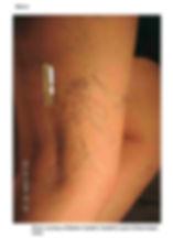 airdrie spider veins