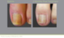airdrie toenail fungus