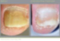 airdrie nail fungus