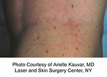 airdrie vein treatment