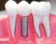 bigstock-Capped-Dental-Implant-Model-694