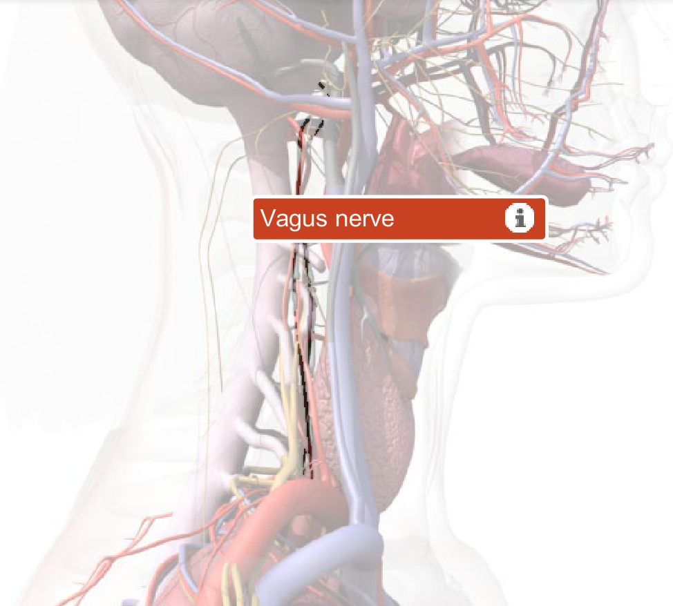 Chiari Malformation And The Vagus Nerve One Of Twelve Cranial