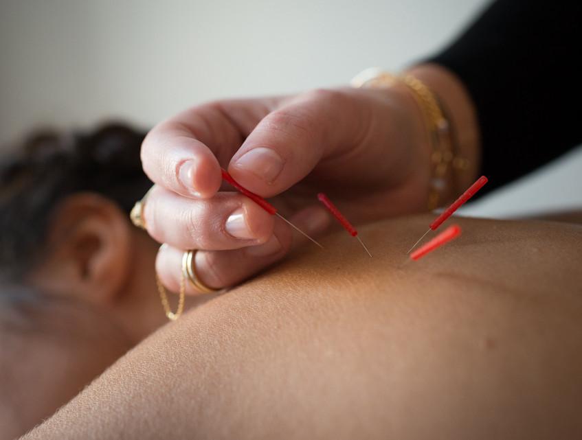Acupuncture Atelier 3
