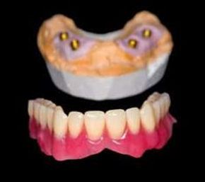 Implant_Over-dentures_offer_the_flexibil