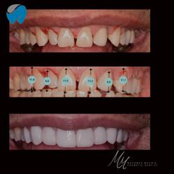 Teeth Veneers At Elite Dental Clinics