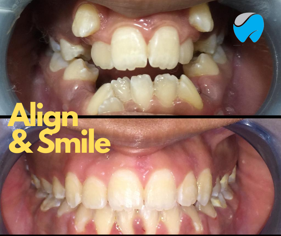 Teeth braces before and after at Elite dental Clinics
