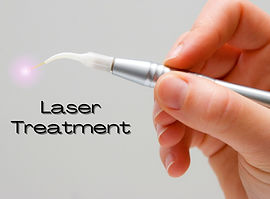 Laser%20Treatment_edited.jpg