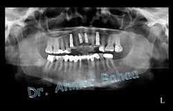 Dental Implants-Dr.Ahmed Bahaa