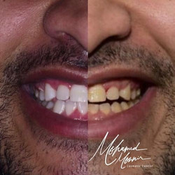 Gum Contoring And Teeth Whitening At Eli