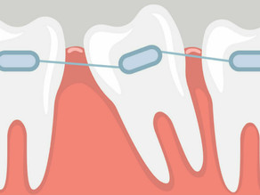 Teeth Braces | Invisalign And Invisible| Indications, Differences, Prices At Elite Dental Clinics