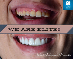 Hollywood Smile by Dr. Mohamed Mounir