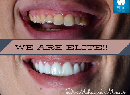 Teeth Veneers Increases your Self Confidence!