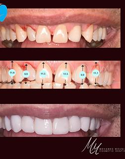 digital smile design teeth veneers