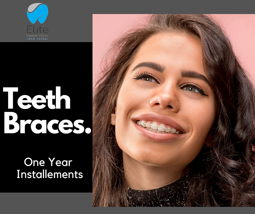 Teeth braces At Elite dental Clinics new Cairo