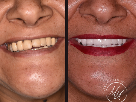 كيف تختار تركيب الأسنان |الفرق بين زركونيوم وإيماكس|طربوش الأسنان|مركز أسنان إيليت التجمع الخامس
