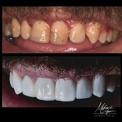 Teeth Veneers by Dr.Mohamed Mounir