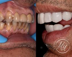 فينيرز الأسنان