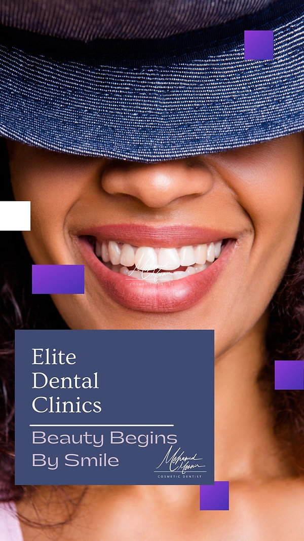 Hollywood Smile At Elite Dental Clinics