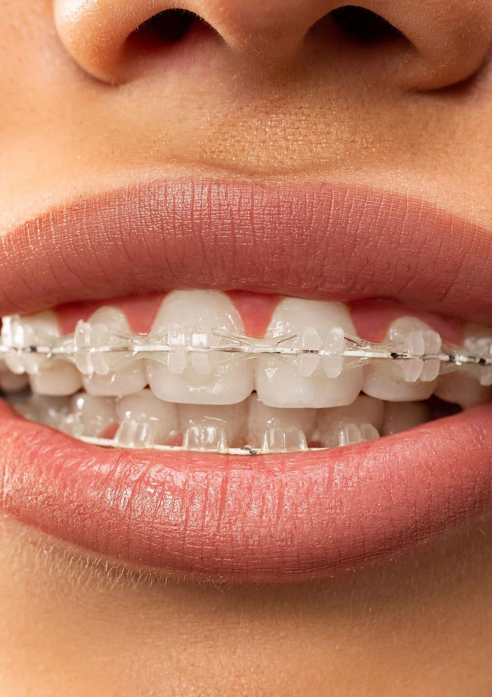 Ceramic teeth braces at Elite dental Clinics new Cairo