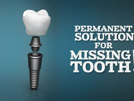 Dental Implants..Your Guide : All What You Have To Know Cost, Procedure, Pain And More