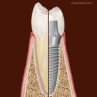 Although Rare Dental Implant Failures Ar