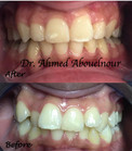 After teeth braces