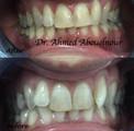 correction of malalignment