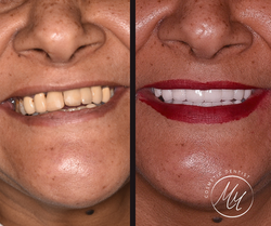 Smile makeover by Emax crowns and veneer