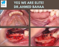 Bone Grafts performed by Dr