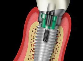 Affordalble #Dental #Implants Clinic New