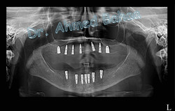 Elite Dental Clinic-Dental Implants