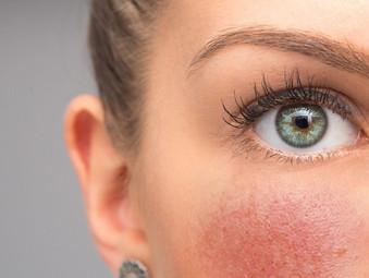 Rosácea: un padecimiento de la piel poco conocido