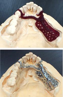 Proteza szkieletowa Asiga