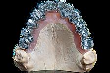 Przykręcana tytanowa suprastruktura