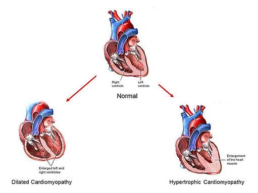cardiac disease.jpg