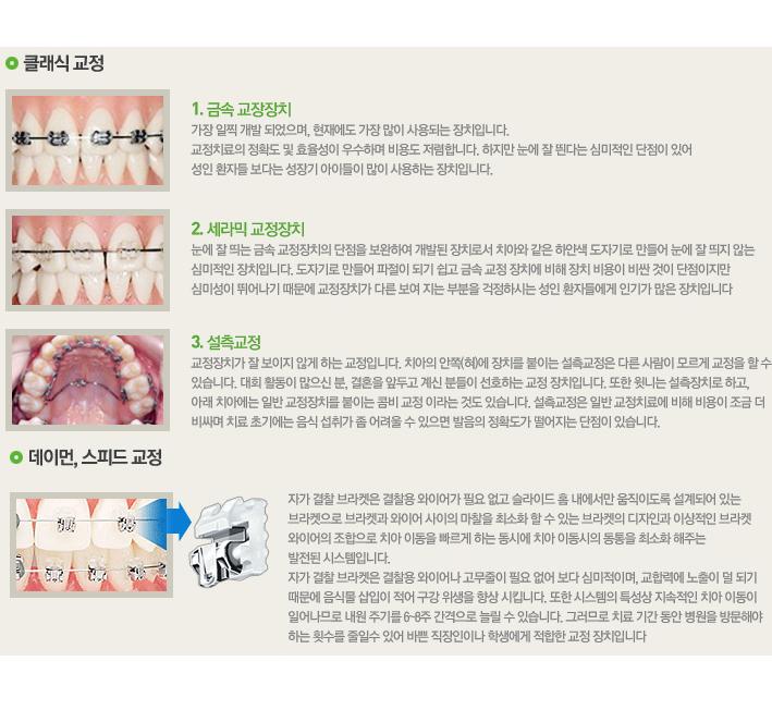 센트럴치과 치아교정