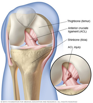 Knee Pain - ACL Injury
