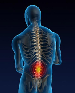 Eliminating Lower Back Pain - 3 Steps