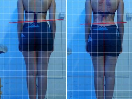 Seitai & New Seitai - Método do Prof. Adriano SaranTerapia Você vê os resultados antes e depois
