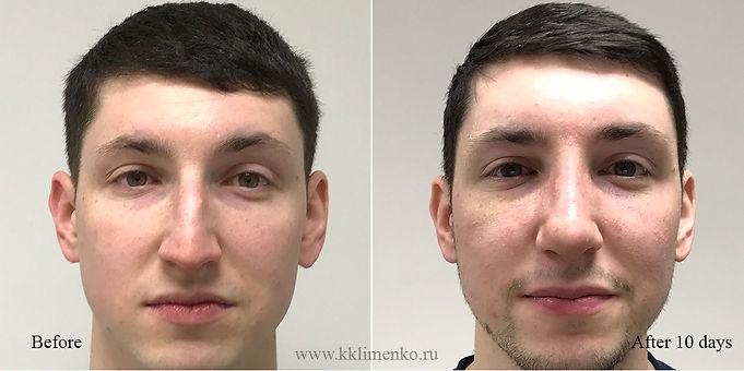 Риносептопластика, фото до и через 10 дней после операции