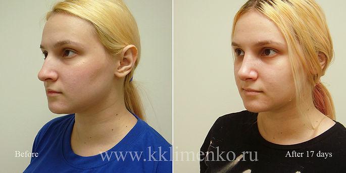 Риносептопластика у хирурга Клименко. Фото пациентки до и после риносептопластики
