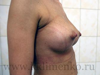 Увеличение груди у хирурга Клименко, фото через 15 дней после операции