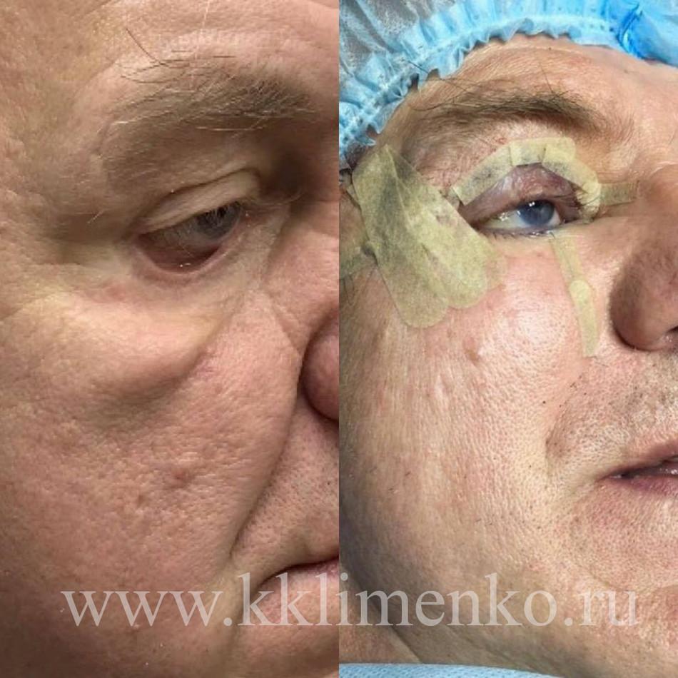 Эктропион (выворот нижнего века) Фото до и после операции. Хирург К.Клименко