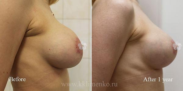 Коррекция осложнений при эндопротезировании и вертикальной подтяжки молочных желез, оперирующий хирург Клименко