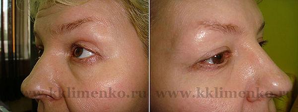 Омоложение лица. Фото через месяц после операции у доктора Клименко