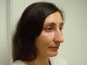 Риносептопластика у хирурга Клименко. Фото перед операцией